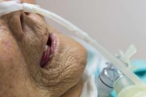 new york tracheostomy swallow expert